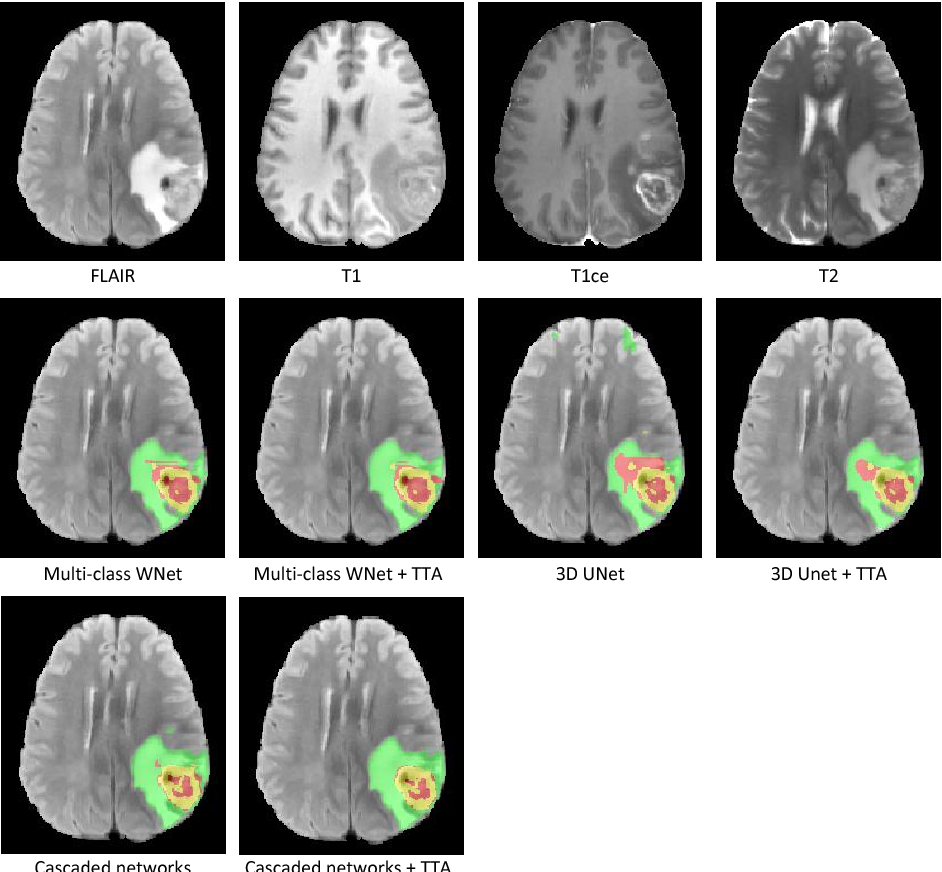 Figure 1 for Automatic Brain Tumor Segmentation using Convolutional Neural Networks with Test-Time Augmentation