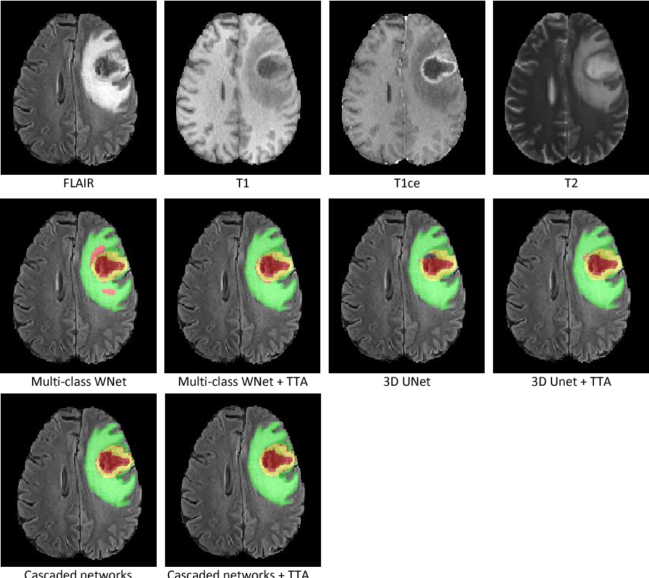 Figure 3 for Automatic Brain Tumor Segmentation using Convolutional Neural Networks with Test-Time Augmentation