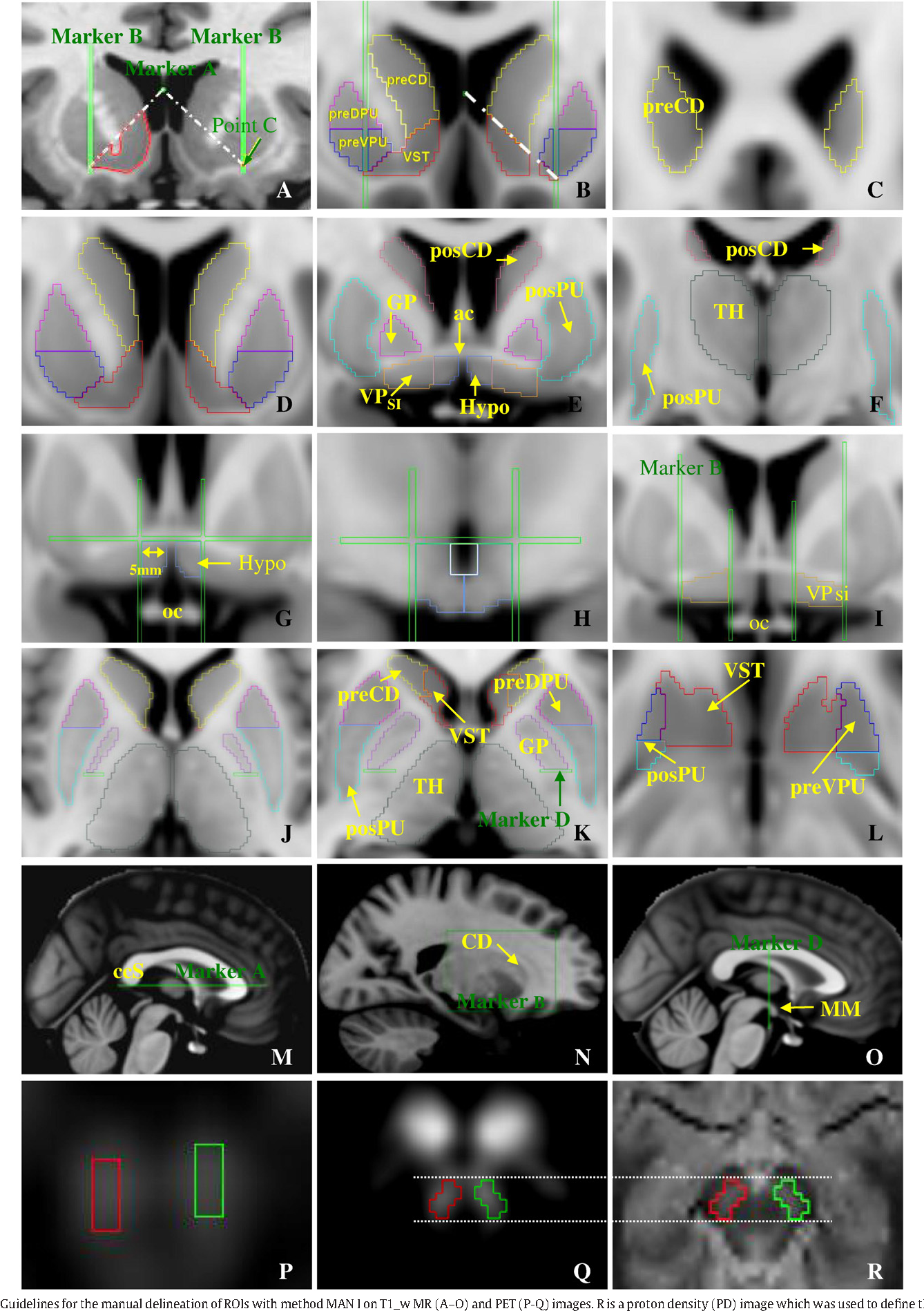 Figure 1 from Imaging dopamine receptors in humans with [11C]-(+ ...