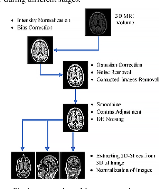 Figure 1 for Deep Convolutional Neural Network based Classification of Alzheimer's Disease using MRI data