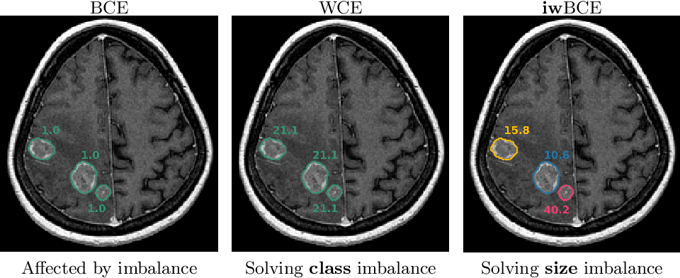 Figure 1 for Universal Loss Reweighting to Balance Lesion Size Inequality in 3D Medical Image Segmentation