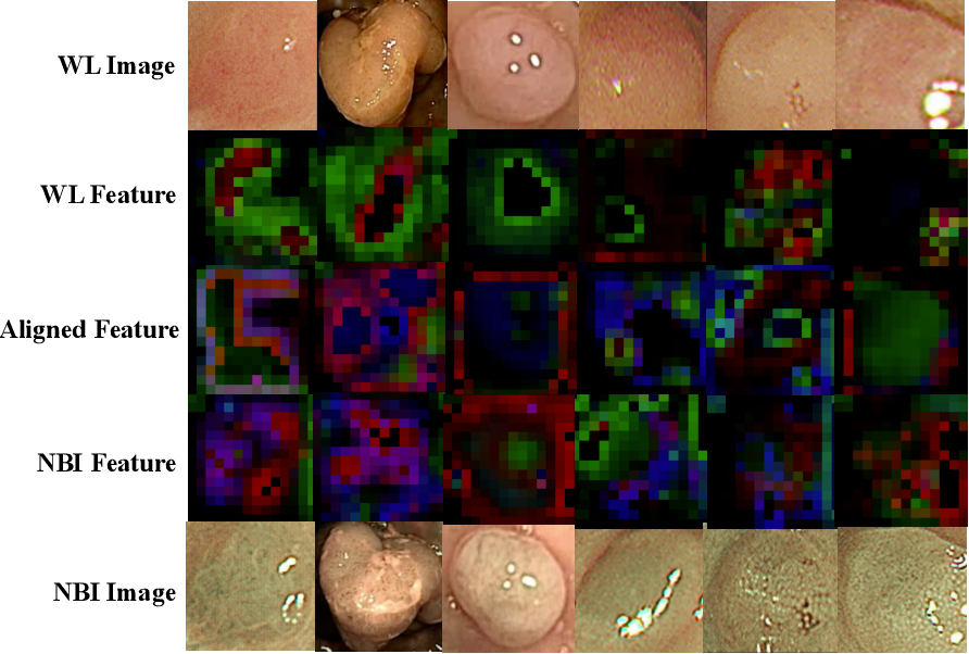 Figure 4 for Colorectal Polyp Classification from White-light Colonoscopy Images via Domain Alignment