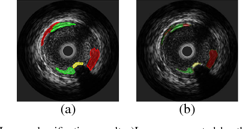 Fig. 5. Image classification result a)Image segmented by the physician, b)Classification Result using the best gain