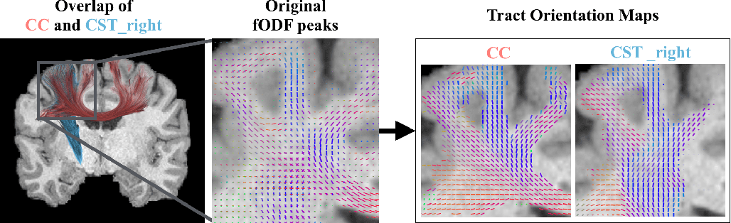 Figure 1 for Combined tract segmentation and orientation mapping for bundle-specific tractography