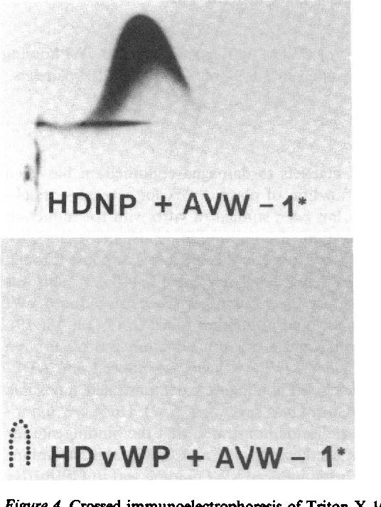 edificio Morbosidad estoy de acuerdo con  PDF] Interaction of von Willebrand factor with human platelets in ...