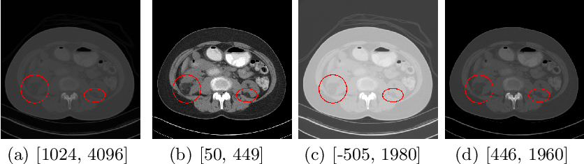 Figure 1 for MVP-Net: Multi-view FPN with Position-aware Attention for Deep Universal Lesion Detection