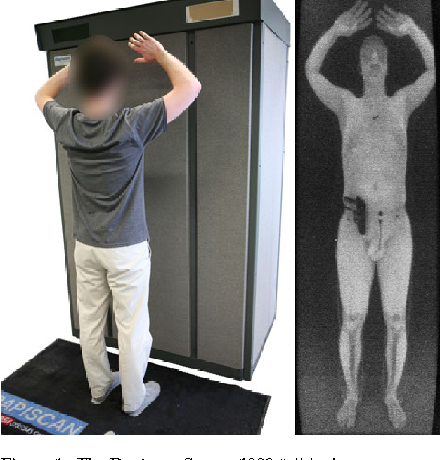 Tsa, Bored Of Seeing You Naked, Removing Airport Body Scanners