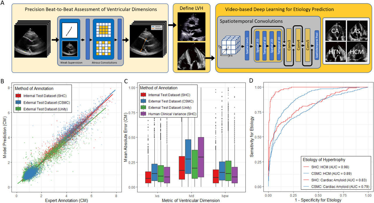Figure 1 for High-Throughput Precision Phenotyping of Left Ventricular Hypertrophy with Cardiovascular Deep Learning