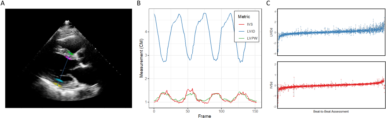 Figure 2 for High-Throughput Precision Phenotyping of Left Ventricular Hypertrophy with Cardiovascular Deep Learning