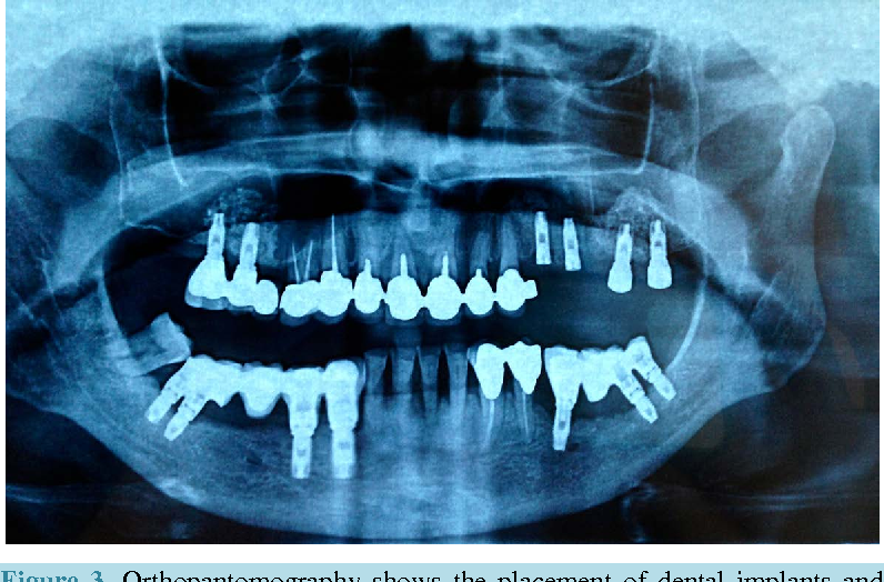 Figure 3. Orthopantomography shows the placement of dental implants and the achievement of a good functional result.
