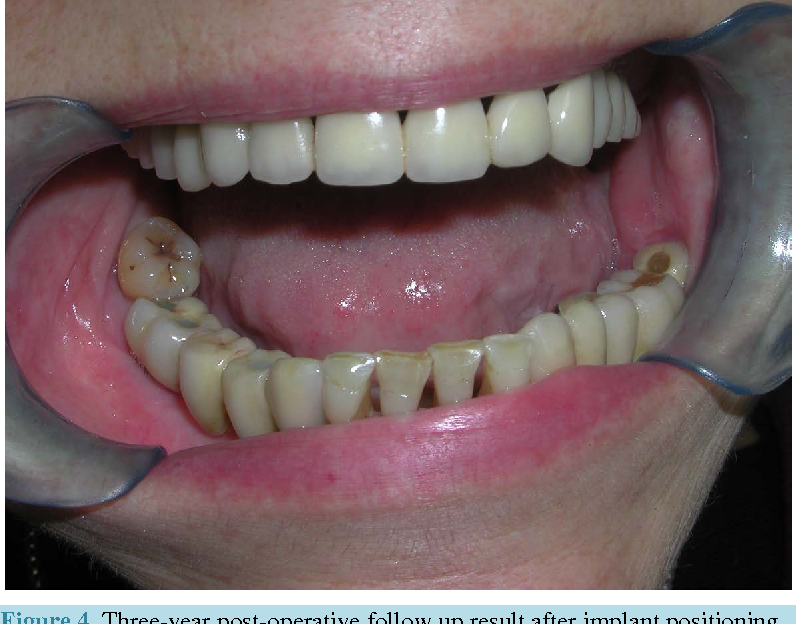 Figure 4. Three-year post-operative follow up result after implant positioning.