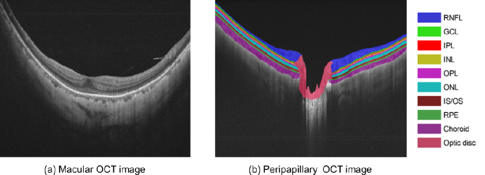 Figure 1 for Multi-scale GCN-assisted two-stage network for joint segmentation of retinal layers and disc in peripapillary OCT images
