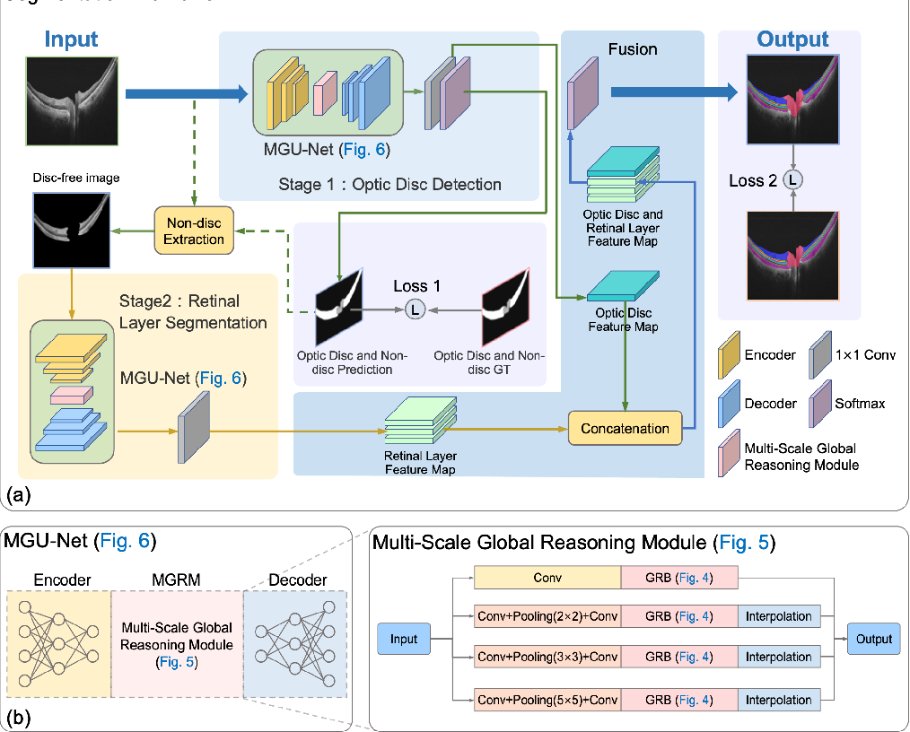 Figure 3 for Multi-scale GCN-assisted two-stage network for joint segmentation of retinal layers and disc in peripapillary OCT images