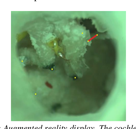 Figure 1 for 3D landmark detection for augmented reality based otologic procedures