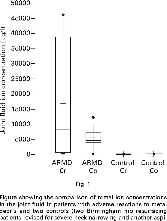 PDF] Early failure of metal-on-metal bearings in hip