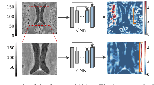 Figure 3 for NeRD: Neural Representation of Distribution for Medical Image Segmentation