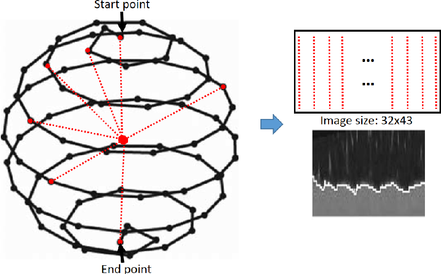 Figure 1 for 2.75D Convolutional Neural Network for Pulmonary Nodule Classification in Chest CT