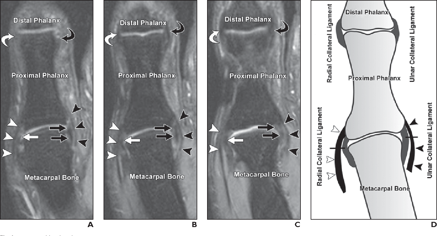 MRI of the thumb: anatomy and spectrum of findings in asymptomatic ...