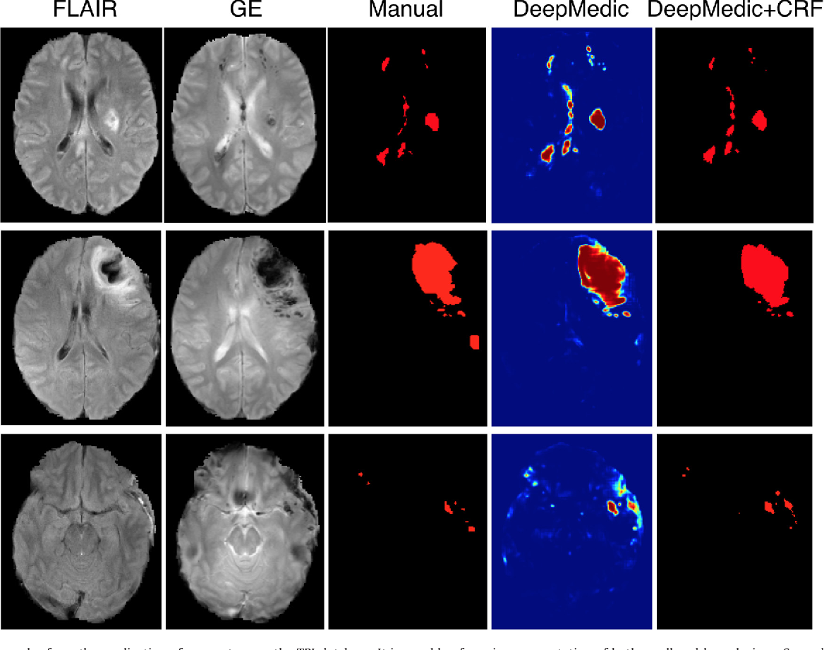 Figure 4 for Efficient Multi-Scale 3D CNN with Fully Connected CRF for Accurate Brain Lesion Segmentation