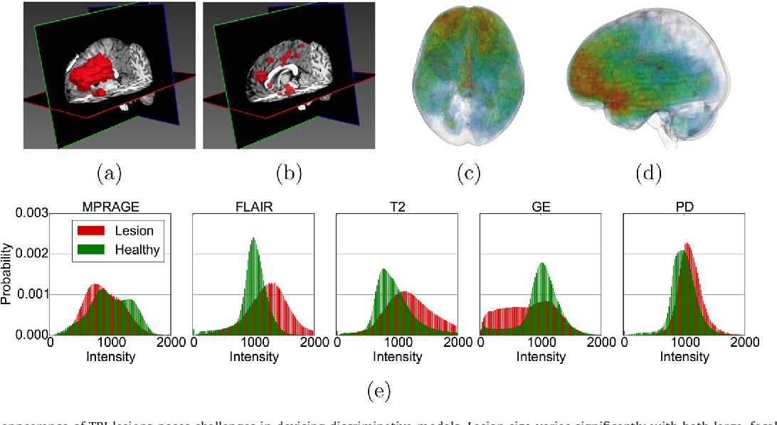 Figure 1 for Efficient Multi-Scale 3D CNN with Fully Connected CRF for Accurate Brain Lesion Segmentation