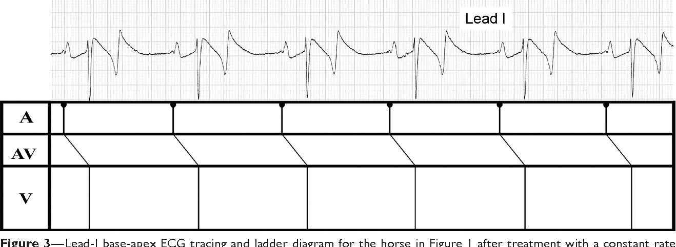 figure 3—lead-i base-apex ecg tracing and ladder diagram for the