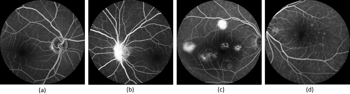 Figure 1 for Generating Fundus Fluorescence Angiography Images from Structure Fundus Images Using Generative Adversarial Networks