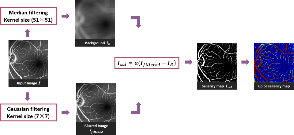 Figure 2 for Generating Fundus Fluorescence Angiography Images from Structure Fundus Images Using Generative Adversarial Networks