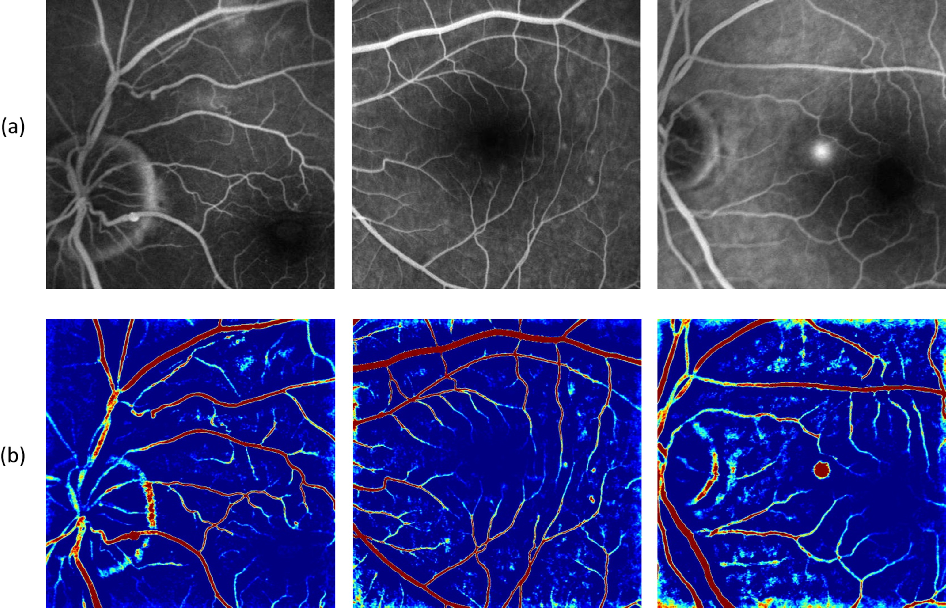 Figure 3 for Generating Fundus Fluorescence Angiography Images from Structure Fundus Images Using Generative Adversarial Networks