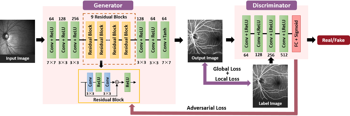 Figure 4 for Generating Fundus Fluorescence Angiography Images from Structure Fundus Images Using Generative Adversarial Networks