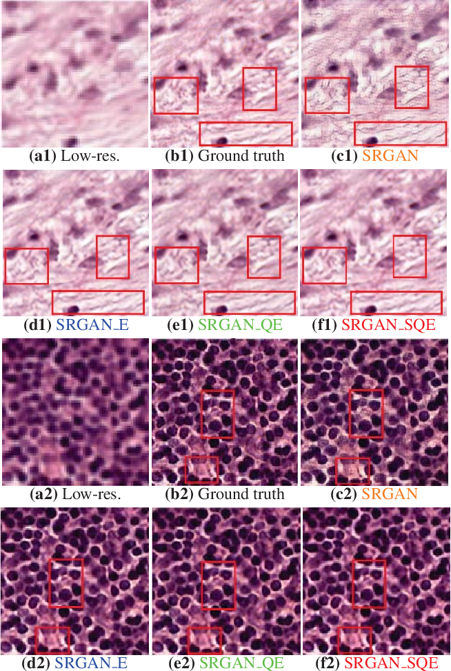 Figure 2 for Robust Super-Resolution GAN, with Manifold-based and Perception Loss