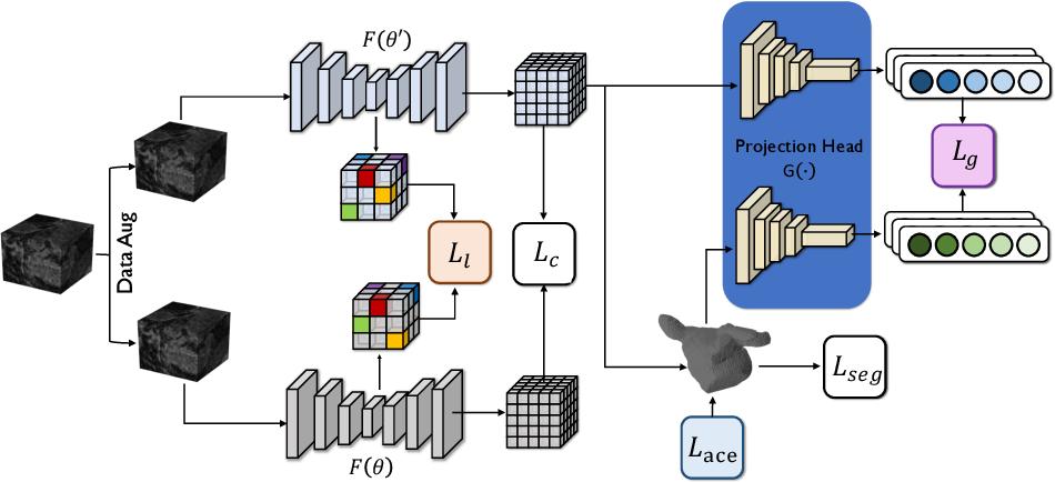 Figure 1 for Momentum Contrastive Voxel-wise Representation Learning for Semi-supervised Volumetric Medical Image Segmentation