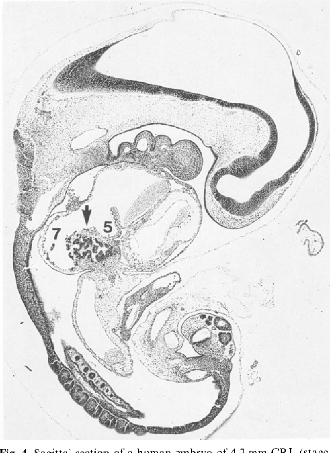 Developmental aspects of the sinus valves and the sinus venosus ...