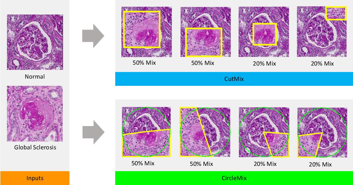Figure 1 for Improve Global Glomerulosclerosis Classification with Imbalanced Data using CircleMix Augmentation