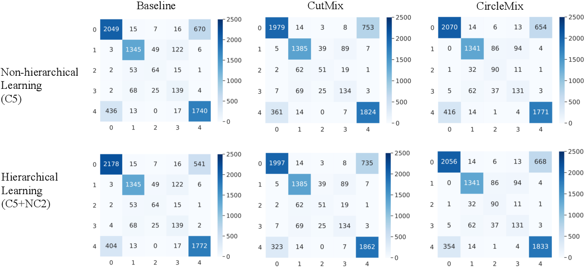 Figure 4 for Improve Global Glomerulosclerosis Classification with Imbalanced Data using CircleMix Augmentation