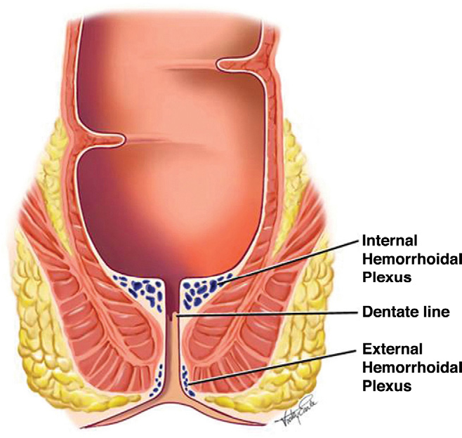 The Evaluation And Treatment Of Hemorrhoids A Guide For The
