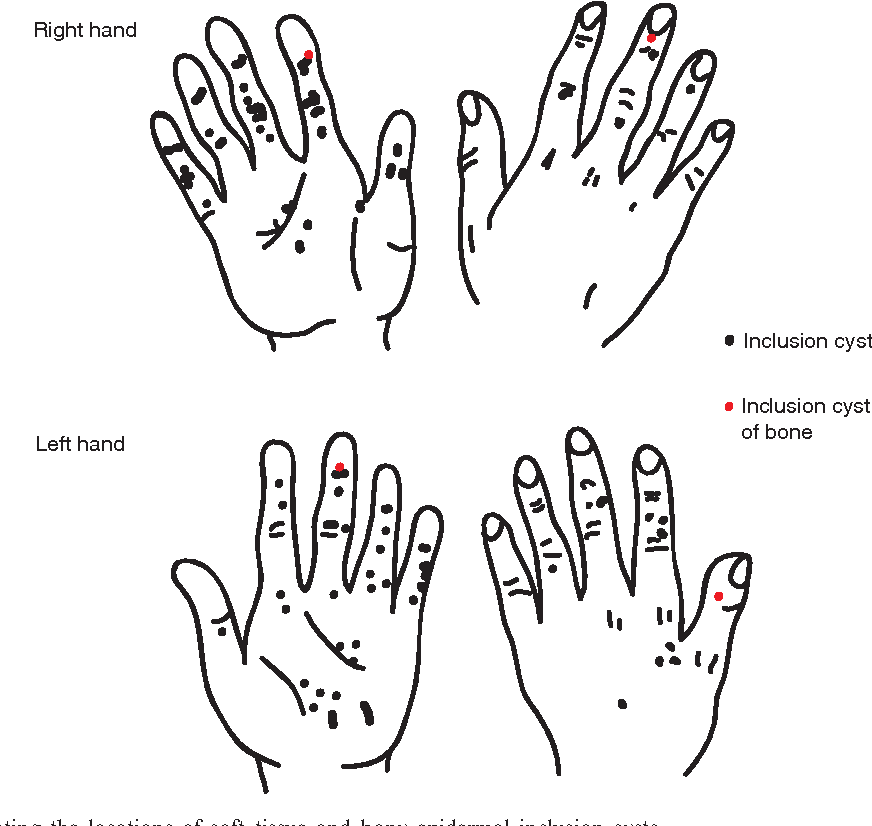 figure 2 from epidermoid cysts in the hand semantic scholar rh semanticscholar org Epidermal Inclusion Cyst Histology Sebaceous Cyst