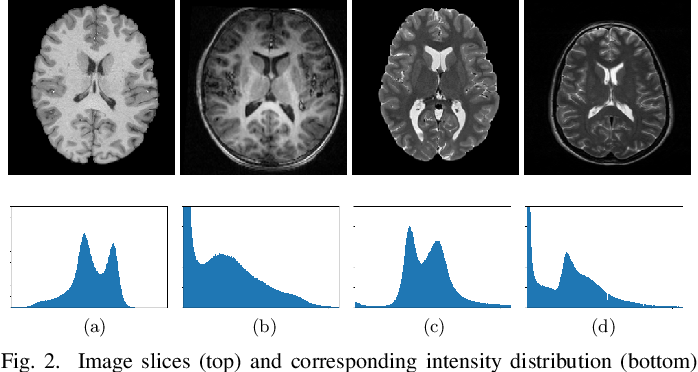 Figure 2 for Domain Adaptation for Medical Image Analysis: A Survey