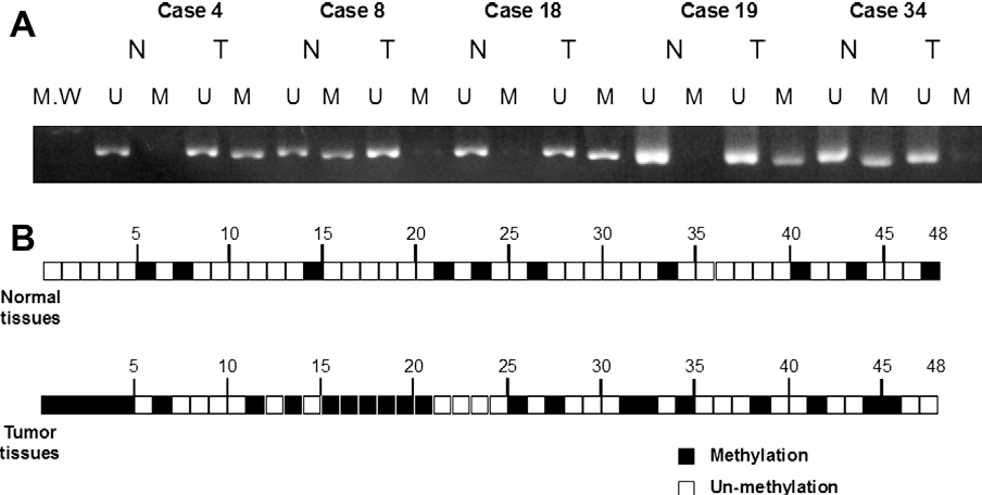 Fig. 4. (A) LIFR expression of five cases presented in normal and tumor tissues by MSP and UNMSP, respectively. Cases 4, 18, and 19 showed the promoter hypermethylation of tumor tissue, while cases 8 and 34 showed that of normal tissue. (B) Promoter hypermethylation of LIFR gene was shown in 23 of 48 (47.9%) tumor tissues and 10 of 48 (20.8%) normal tissues. Black squares showed cases of promoter hypermethylation of LIFR gene, while white squares showed those of non-methylation of LIFR gene. LIFR: leukemia inhibitory factor receptor; MSP: methylation-specific PCR; UNMSP: un-methylation-specific PCR.