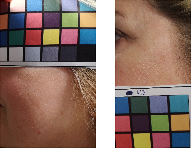 Figure 1 for Tracking Skin Colour and Wrinkle Changes During Cosmetic Product Trials Using Smartphone Images