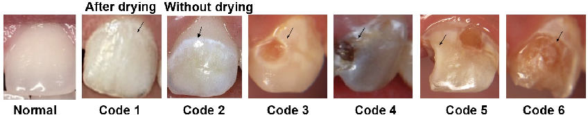 Figure 3 for A Smartphone-based System for Real-time Early Childhood Caries Diagnosis
