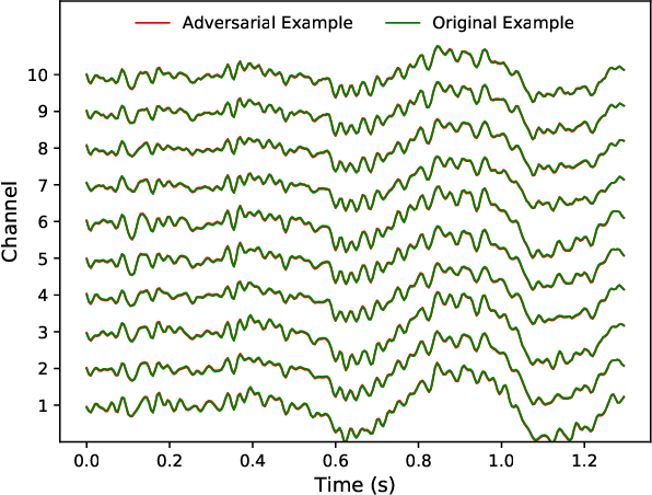 Figure 2 for Active Learning for Black-Box Adversarial Attacks in EEG-Based Brain-Computer Interfaces