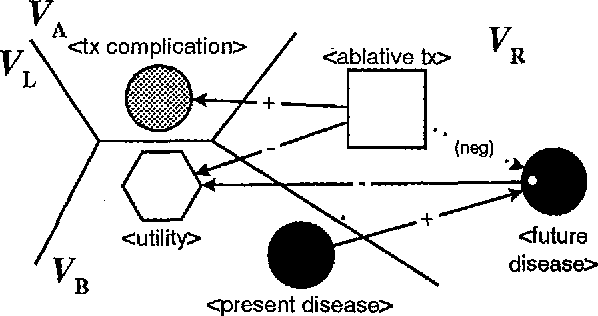 Figure 1 for Graph-Grammar Assistance for Automated Generation of Influence Diagrams