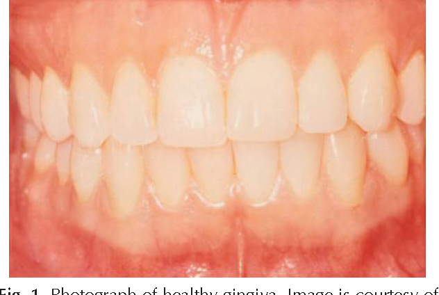 Figure 1 From Maternal Oral Health In Pregnancy Semantic Scholar