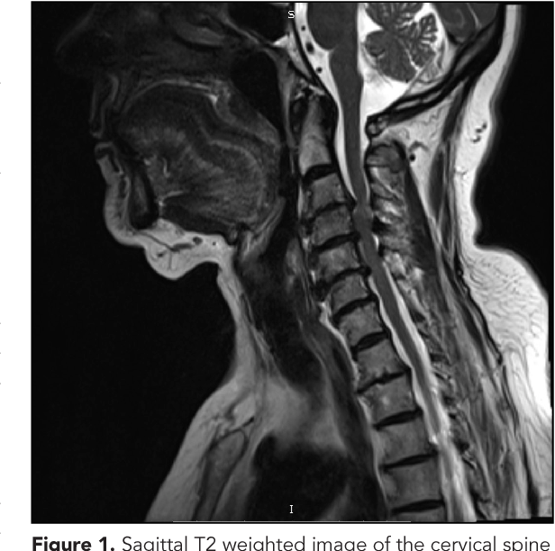 Sagittal T2 Weighted Image Of The Cervical Spine Showing Cord Compression And Myelopathy