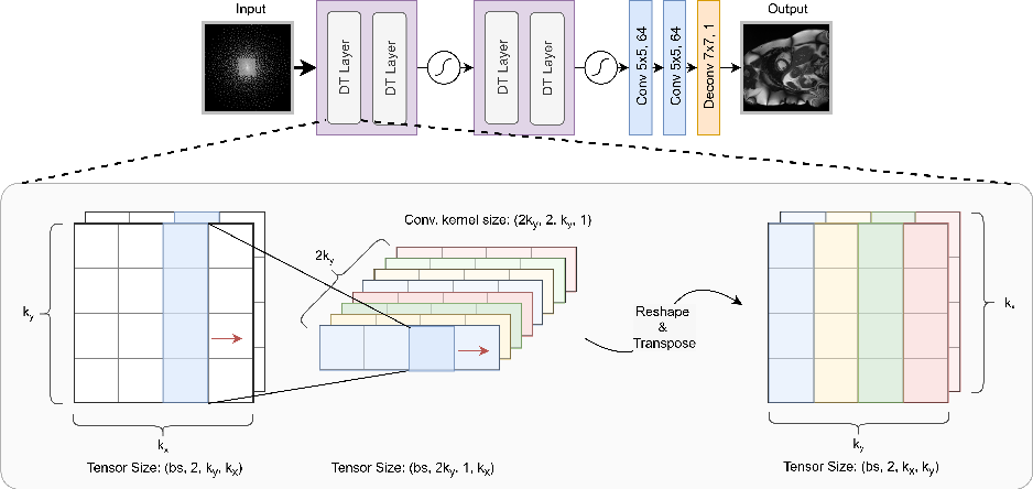 Figure 1 for dAUTOMAP: decomposing AUTOMAP to achieve scalability and enhance performance