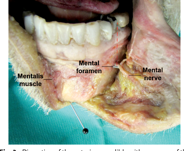 figure 2 from the safe zone for placement of chin implants
