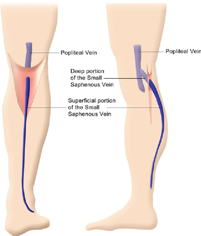 Endovenous Laser Ablation Of The Small Saphenous Vein Sparing The