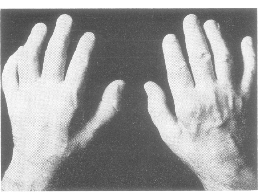 Distal chronic spinal muscular atrophy involving the hands ...