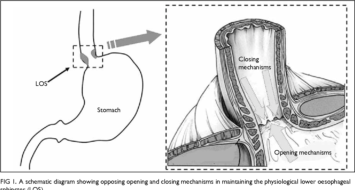 Figure 1 From Diagnosis Of Gastroesophageal Reflux Disease In Still Diagram A Schematic Showing Opposing Opening And Closing Mechanisms Maintaining The Physiological