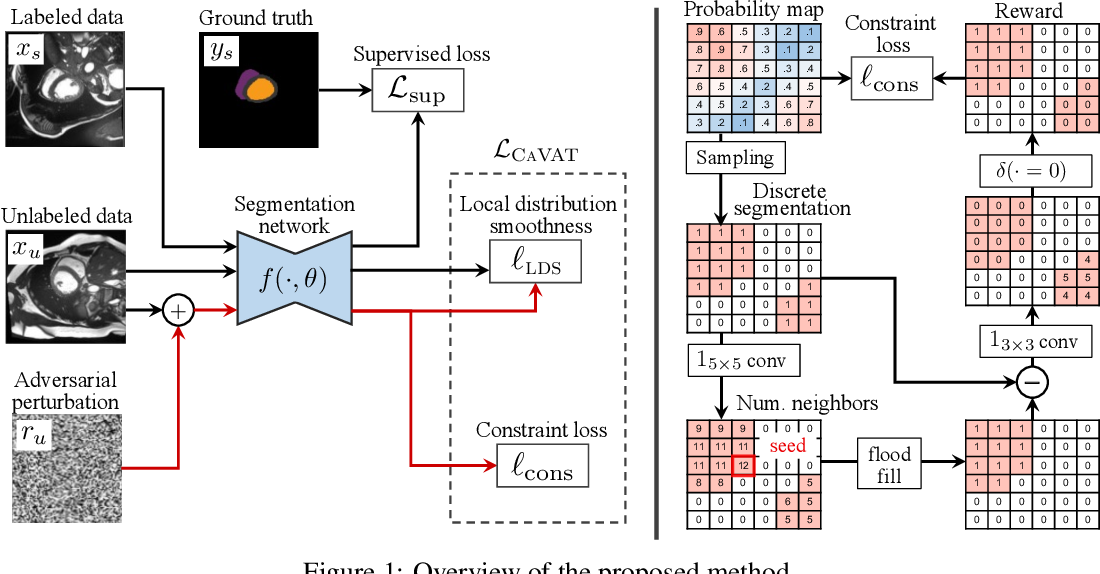 Figure 1 for Context-aware virtual adversarial training for anatomically-plausible segmentation